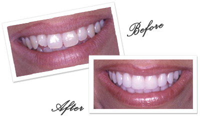 Goa Dentist for smile makeover in Goa