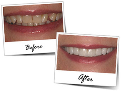 Smile Makeover in Goa